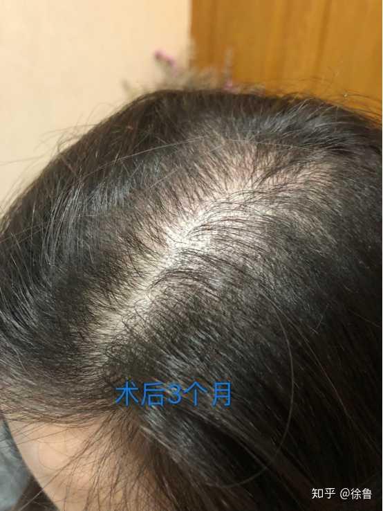23岁女生狂脱发,怎么能快速生发?