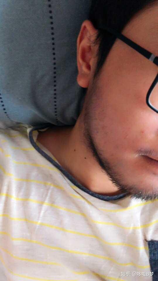 我这样算不算络腮胡有没有锦鲤让他不长出来我不敢刮胡子今年17比哪里有鱼苗办法图片
