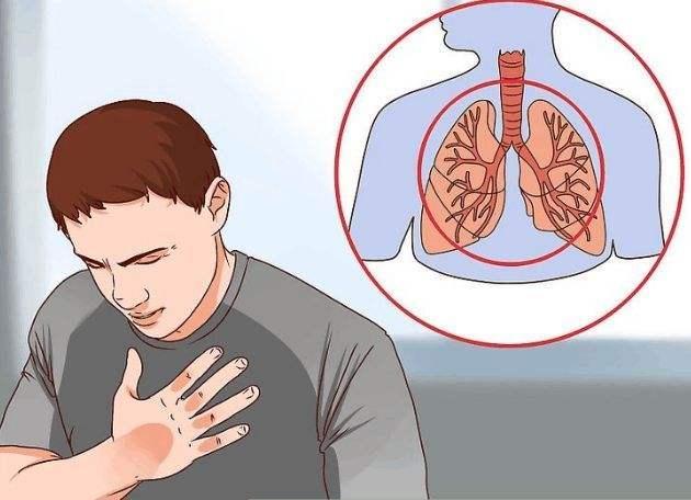 慢性食炎症状_慢性支气管炎是怎么检查出来的呢,有什么具体症状?