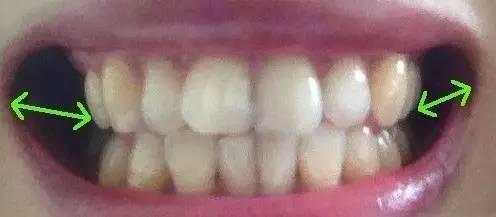 颊齿_牙齿正畸有哪些方式,对脸型能造成多大的改变? - 知乎