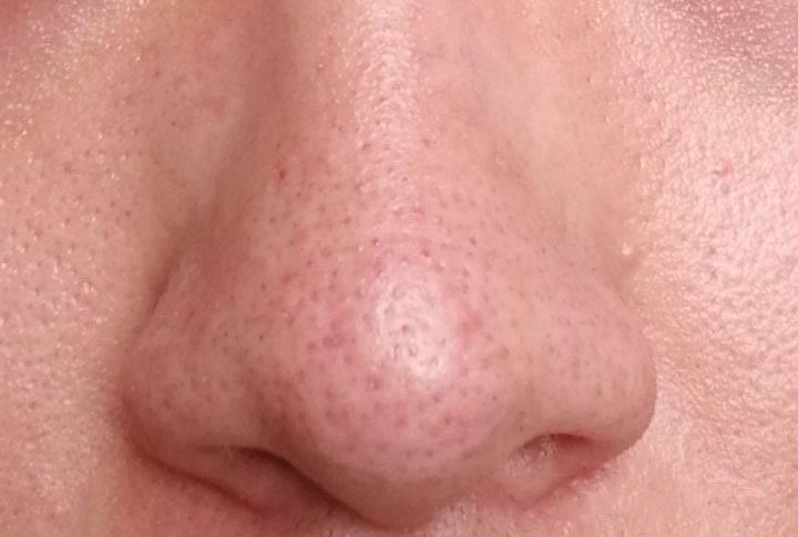 怎么去除黑头并且收缩鼻子上的毛孔?