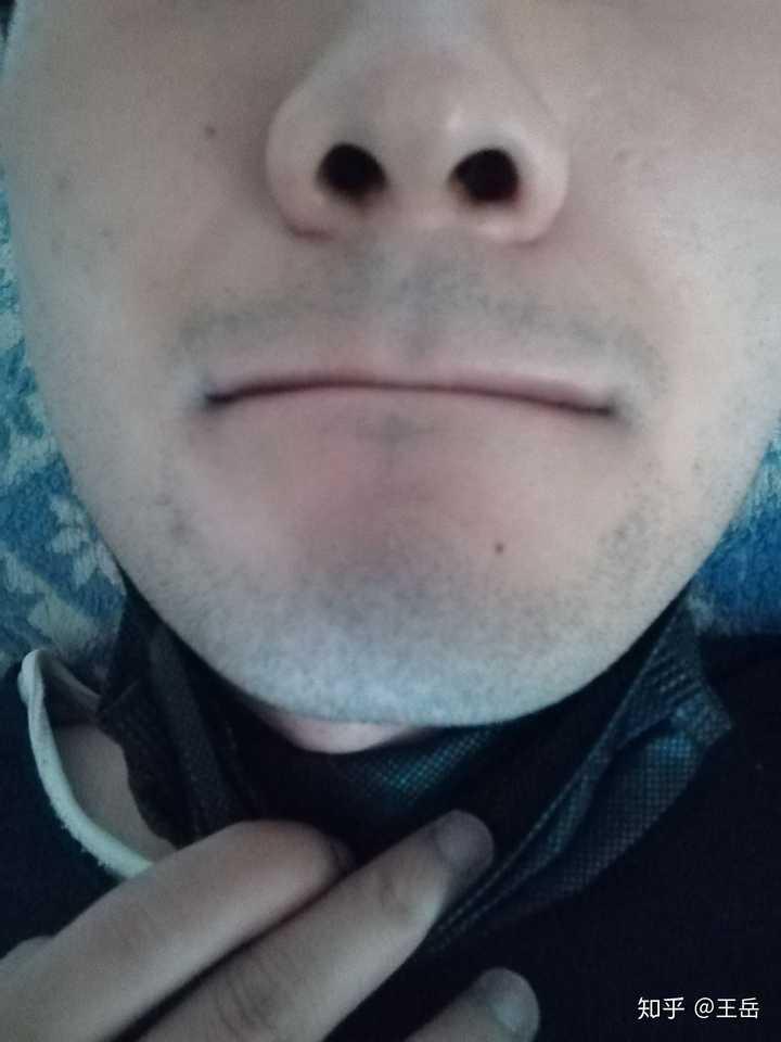 胡子每天都刮,络腮胡,怎么也刮不干净,怎么办?
