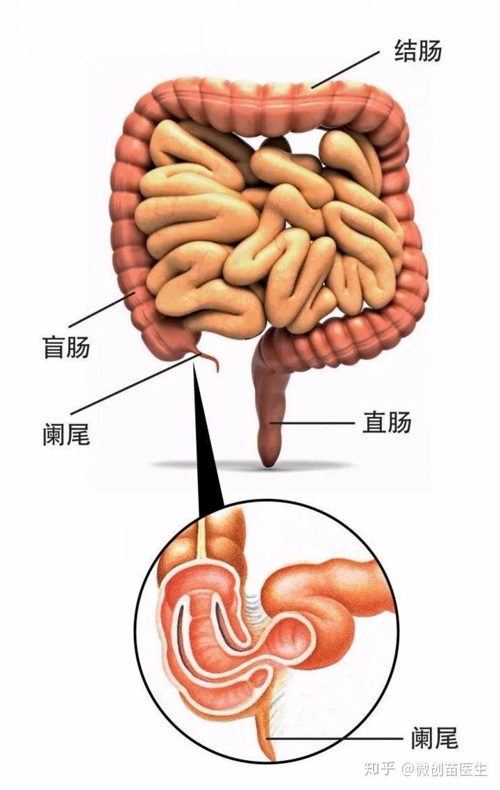 術 後 盲腸