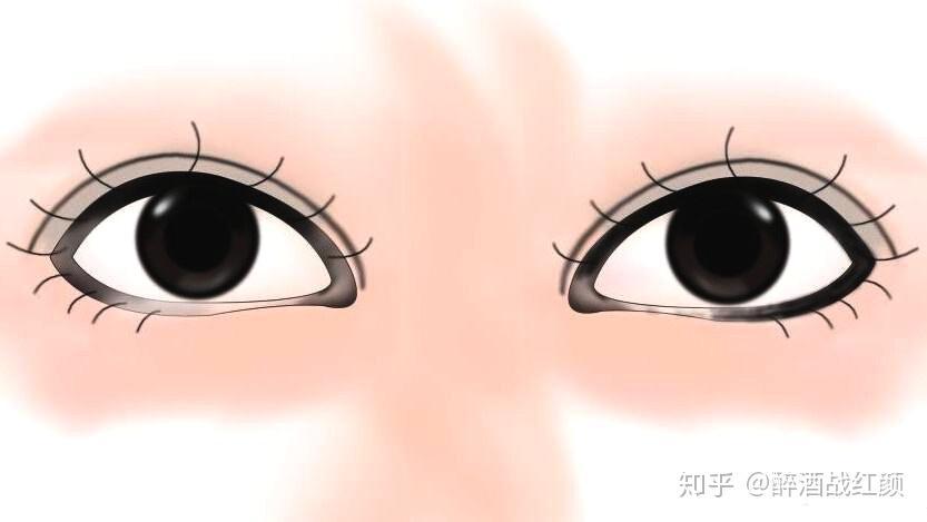 痙攣 眼球
