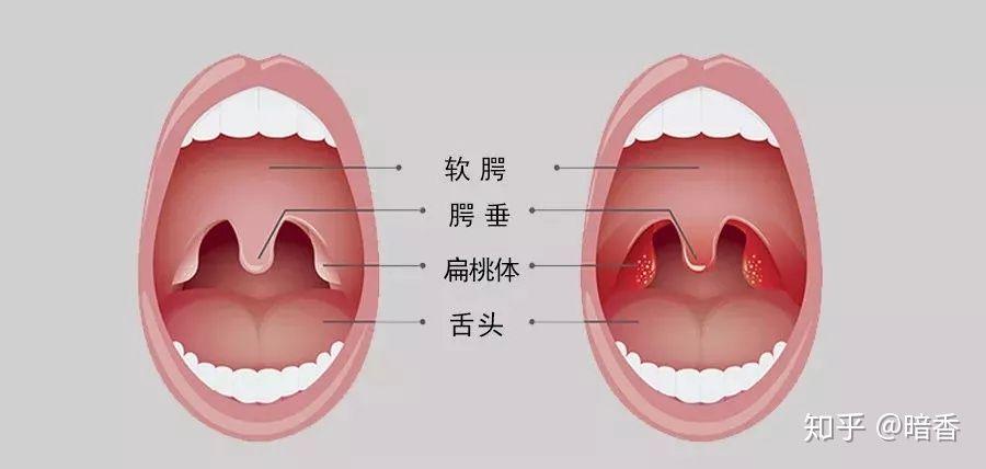 腺 症状 扁桃