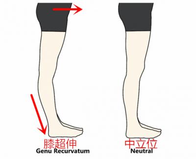 如何科学矫正膝超伸?