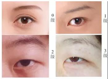 眼部整容有哪些_眼综合有哪些?为什么开眼角+割双眼皮要一起做 - 知乎