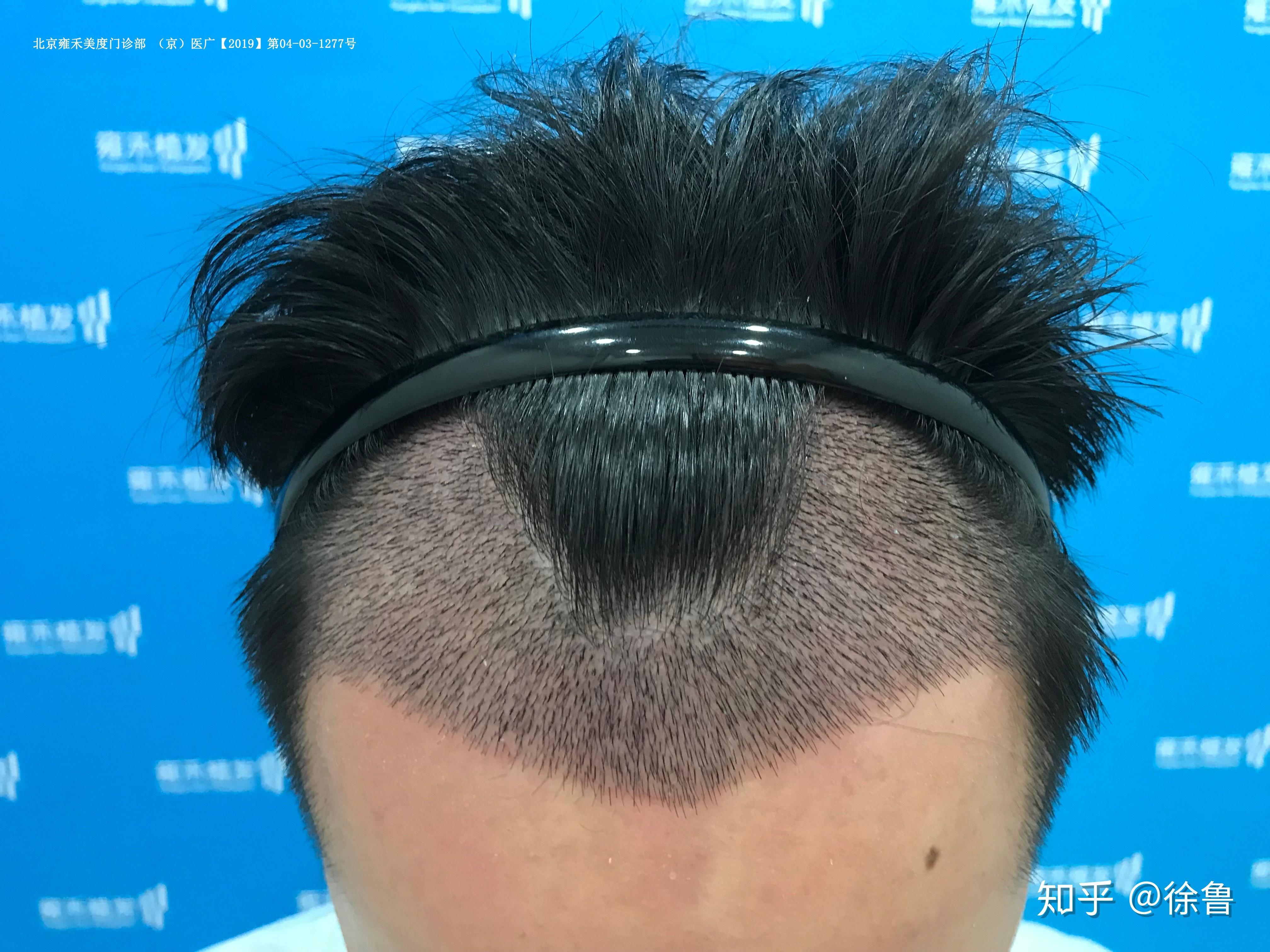 如何生发_科普:脱发严重怎么办?发际线后移如何治疗?植发效果怎么样 ...