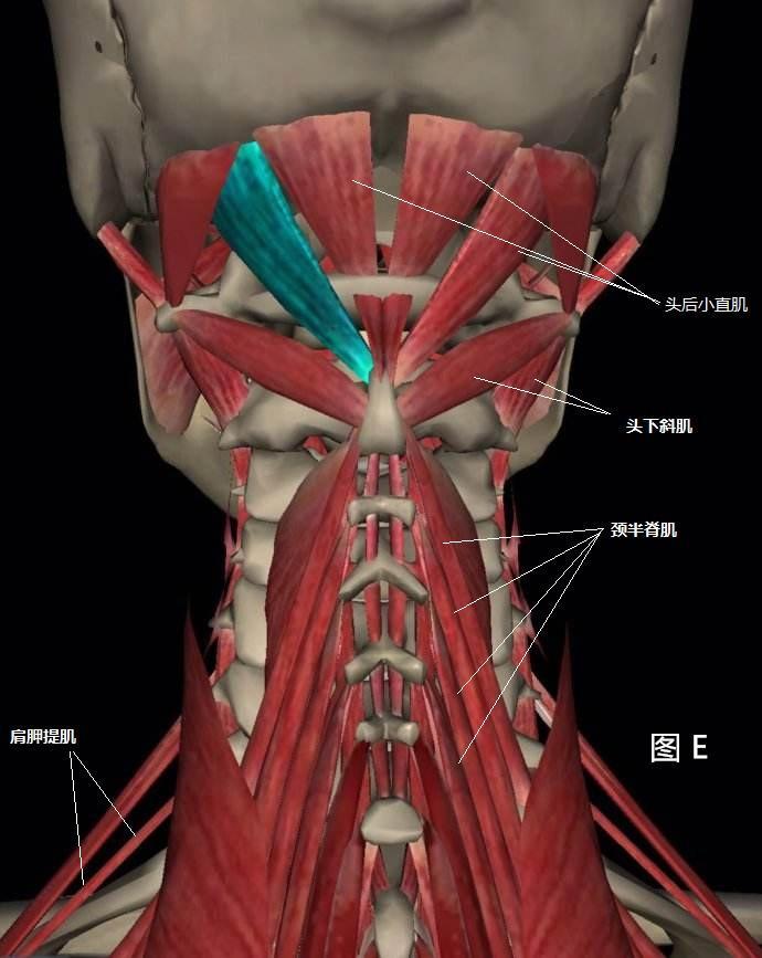 背部肌肉分布_经常性头痛之不容忽视的小肌肉群-知乎