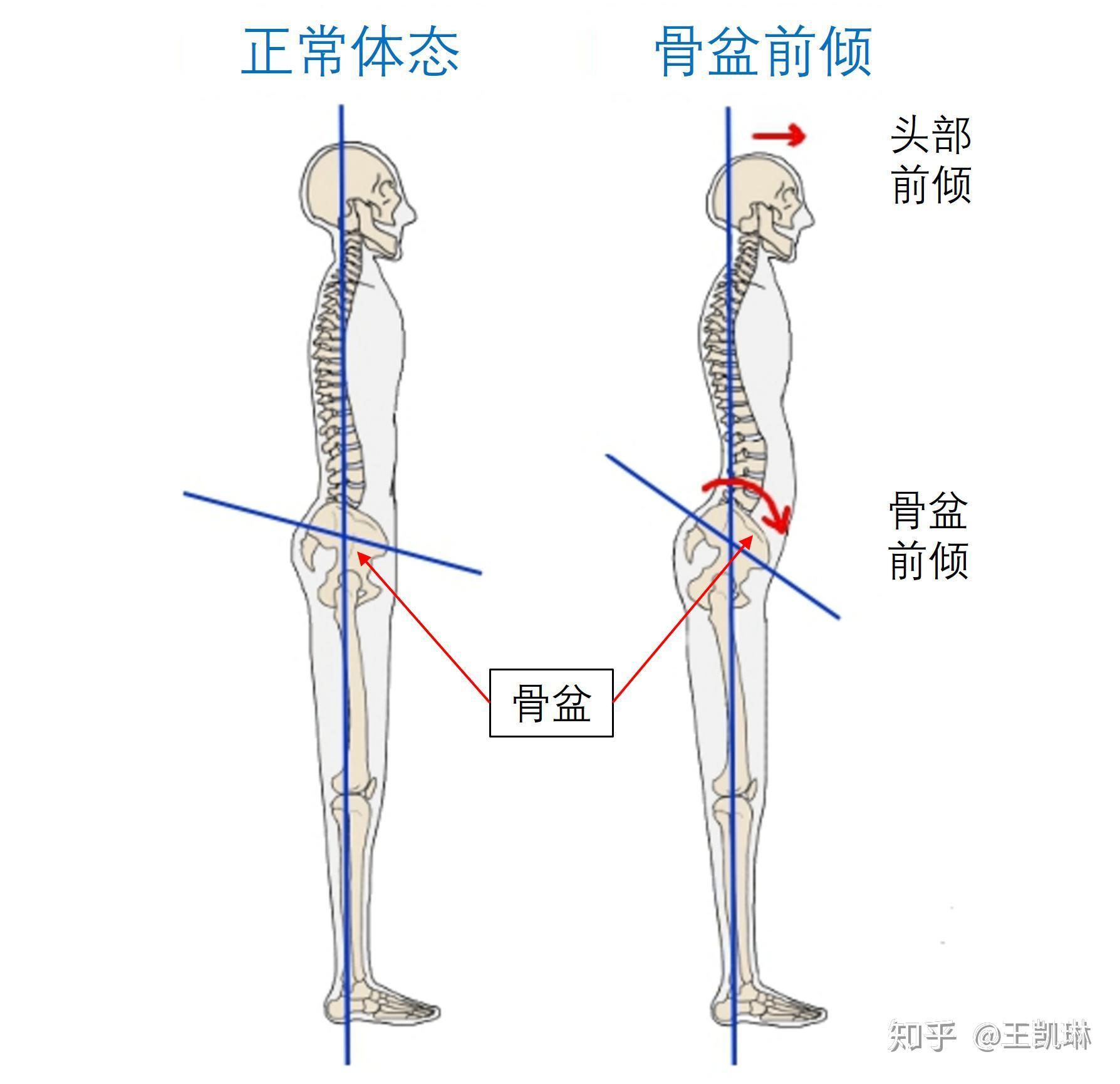 正常女生腿型_如何让腿变直? - 知乎