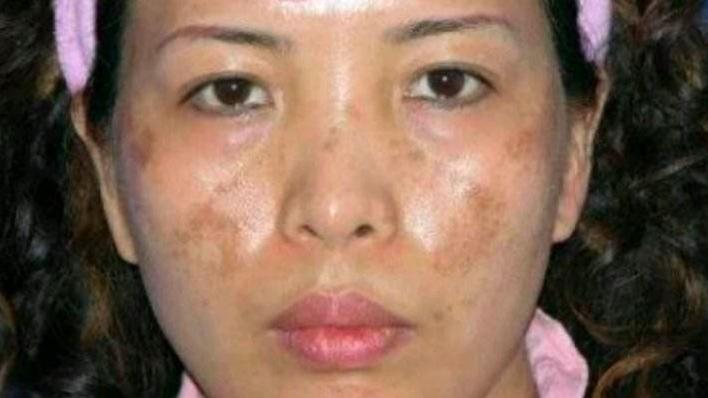 护肤的步骤_皮肤晒伤后,导致的色素沉着出现晒斑怎么办? - 知乎