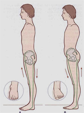 小腿肌肉_上下交叉体态 (LCS之骨盆前倾 (旋前足)) - 知乎