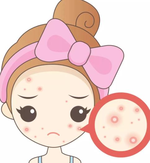 油痘肌怎么护肤?痘痘肌的正常护肤顺序?怎么调理成无痘肤质?