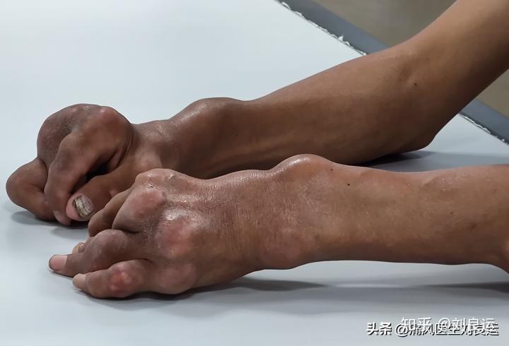 短短五年间四肢关节长满痛风石,吃药还能溶解尿酸盐结晶吗?