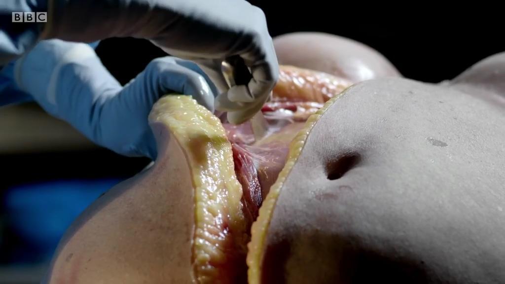 法医尸体解剖_法医是如何解剖尸体的呢?法医尸体解剖全过程解密 - 知乎
