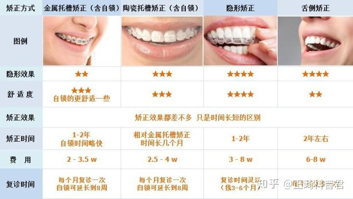传统牙套和自锁牙套_牙套种类对比区别! - 知乎