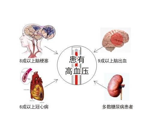 高血圧 原因