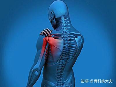 肩周炎止痛_肩周炎号称五十肩,哪些人是肩周炎高危人群,怎样缓解肩周炎 ...