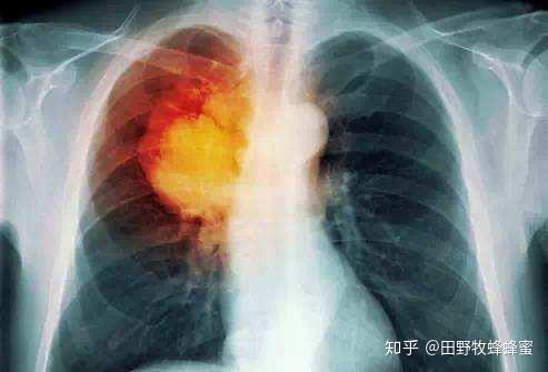 肺结核是皇家果冻治疗吗?肺部有什么好处吗?
