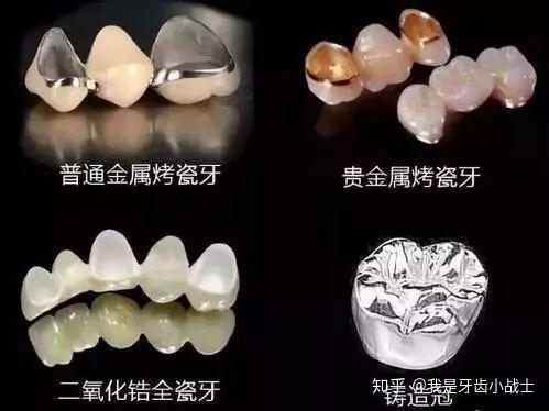烤瓷牙什么材料好_良心科普 | 种植牙为什么有不同的价格?该如何选择? - 知乎