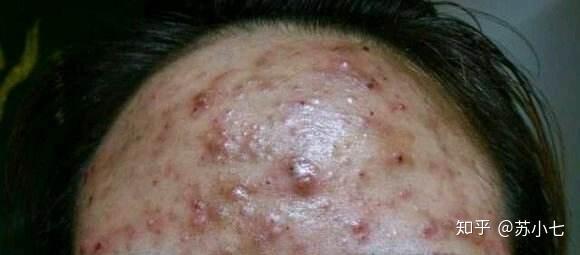 护肤的步骤_催熟的痘痘应该怎么处理? - 知乎