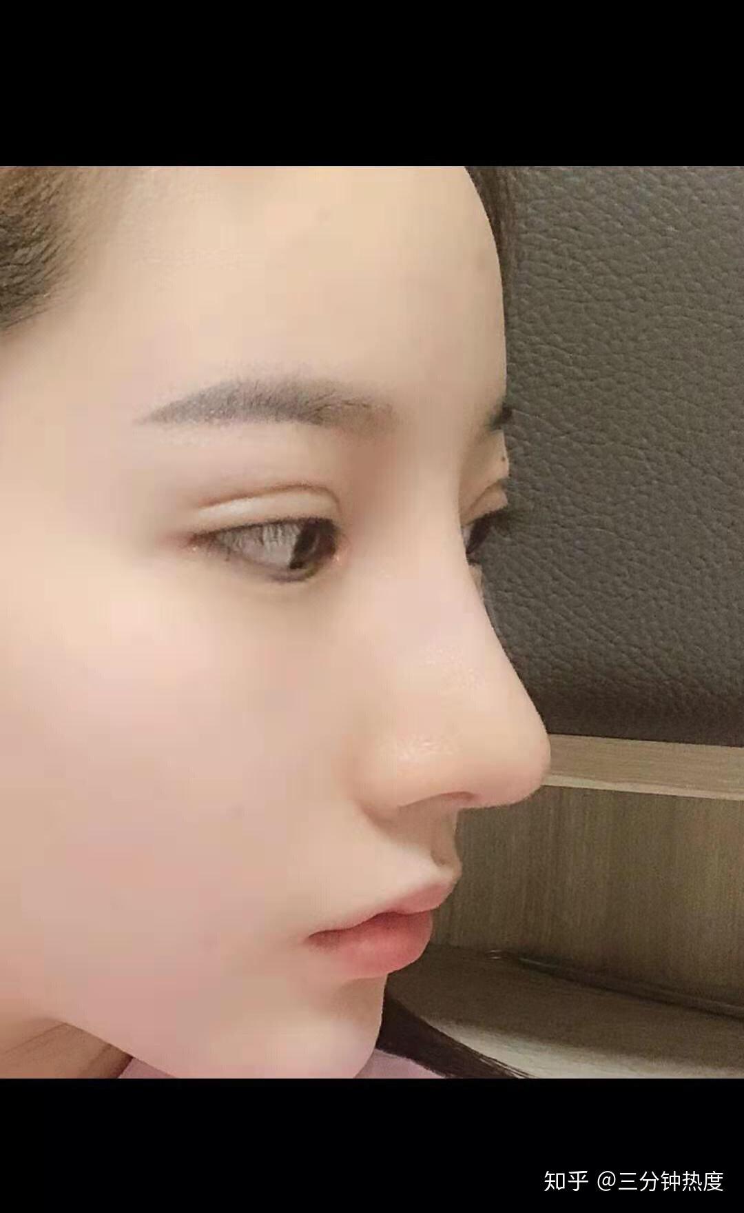 医院用的生理盐水_割双眼皮有什么危险吗? - 知乎