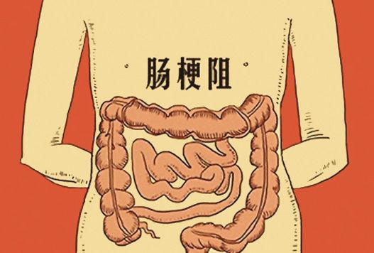 什么行为习惯容易引起肠梗阻?