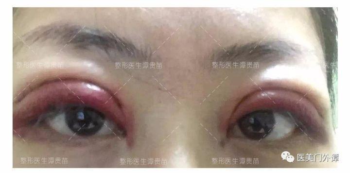 医院用的生理盐水_割双眼皮和开眼角,大概需要恢复多久? - 知乎