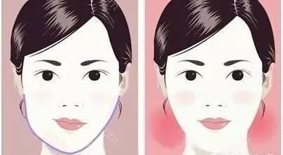 面部不对称怎么办?颧骨下颌角矫...