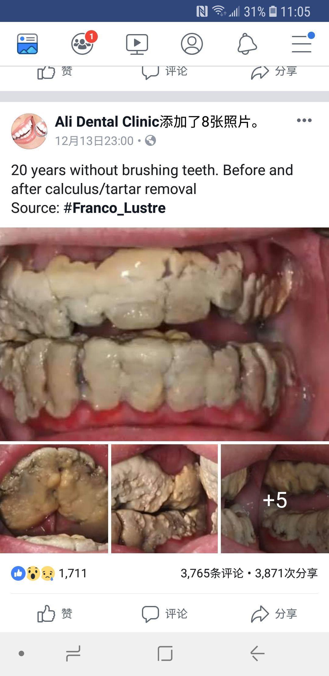 爽到死_如果一个人从出生就不刷牙,20 年后牙是什么样子? - 知乎