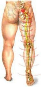 腰椎间盘滑脱图片_大夫……我的腰椎间盘是不是突出了?! - 知乎