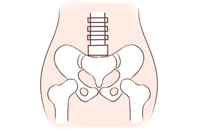 骨盆松弛的症状图片