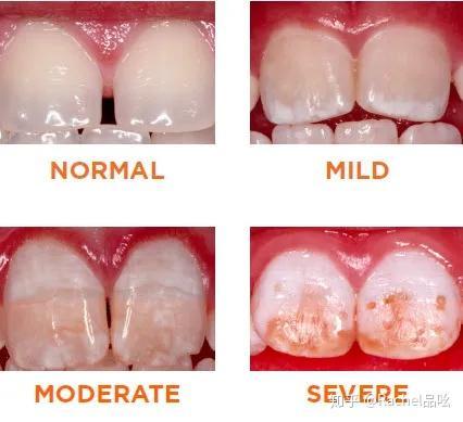 含氟牙膏对儿童是否安全?